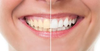 A woman before and after teeth whitening in Bentley
